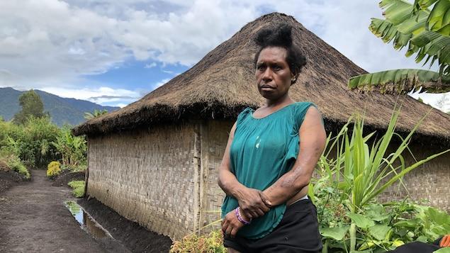 Margaret Kambao debout devant une hutte, exposant les cicatrices de ses brûlures.